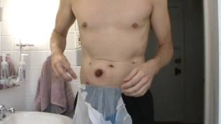 Colectomy-1st bag change-Pt 2-Video 13-Sept 17