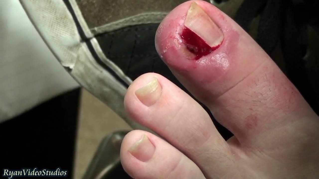 Ingrown toenail surgery game