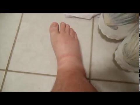 Heal Swollen Legs Ankles Feet Naturally Edema Cure Fix