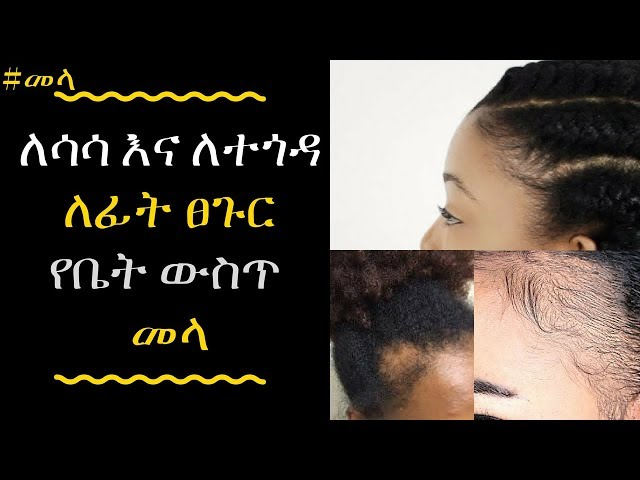 Ethiopia: Hair Treatment Tips For Dry, Dull or Frizzy Hair