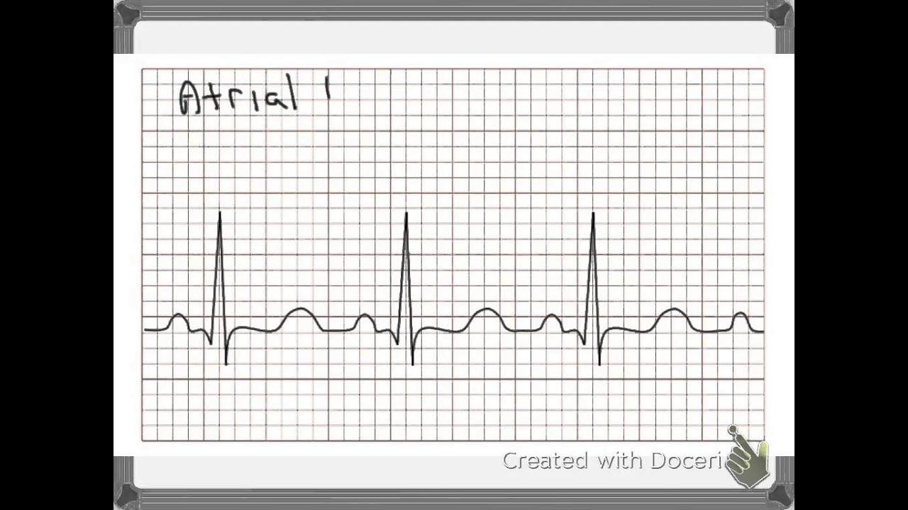 ECG tutorial - YouTube - photo#2