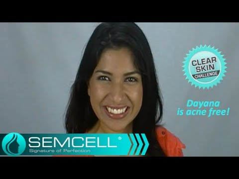 SemCell Lilac ClearSkin Serum & Moisturizer - Dayana is acne free!