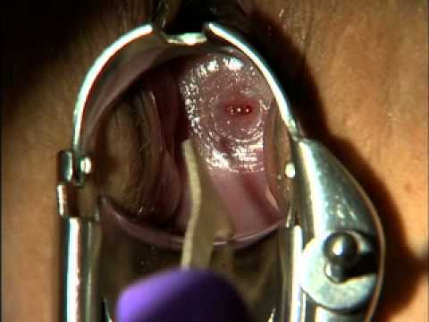Medicina - Exame Pélvico (pelvic Examination) video
