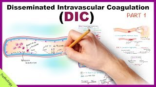 DIC: Disseminated Intravascular Coagulation / Part 1