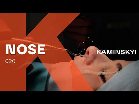 Закрытая ринопластика. КАК УБРАТЬ ГОРБИНКУ - HUMP REMOVAL (Dr Edgar Kaminskyi)