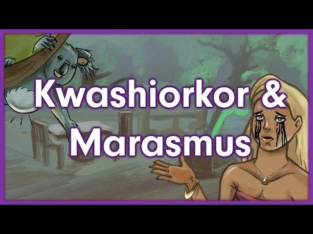 Kwashiorkor Video Watch Hd Videos Online Without Registration