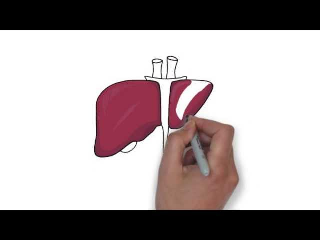 New Hepatitis C Treatment: Solvadi/Sofosbuvir FDA Approved and Available Now