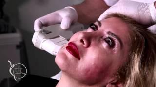 Ultherapy (Focus Ultrasound) ile Cilt Gençleştirme
