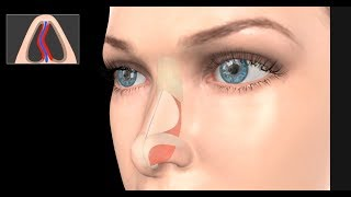 Deviated Septum Surgery (Septoplasty)