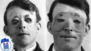 9 Craziest Things Doctors Have Ever Done