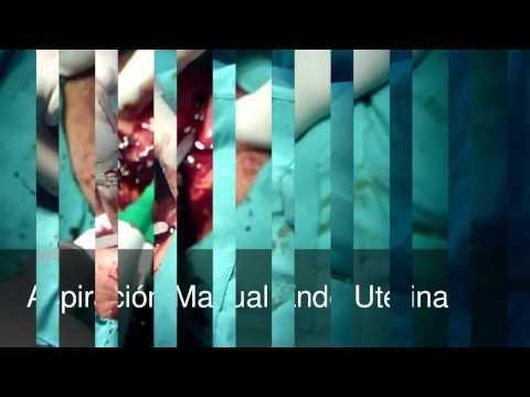 Imperforate Hymen Surgery thumbnail