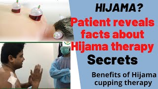 #what is cupping? Watch interview and #opnion about #cuppingtherapy / #Hijama by a Patient #sachin
