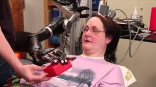 ابتكار ذراع آلية تتحرك بمجرد التفكير