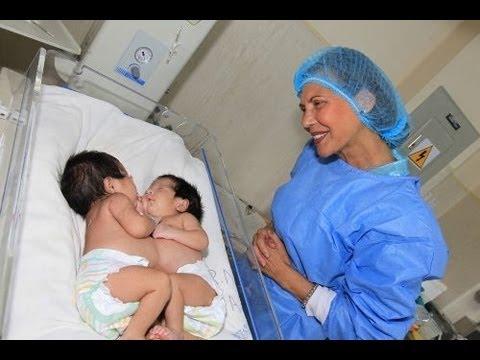 siamesas nacidas en hospital Almenara fueron separadas con éxito en HD