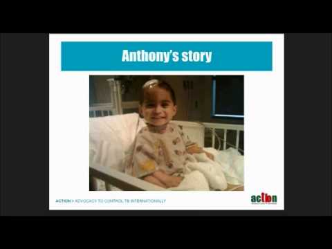 Children And Tuberculosis Webinar.wmv