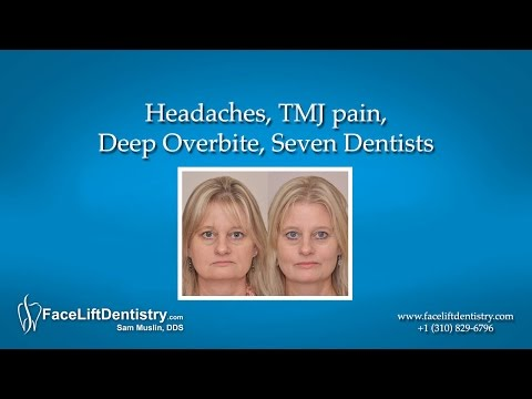 Deep Overbite Correction without Braces or Surgery with the Dental Facelift Treatment