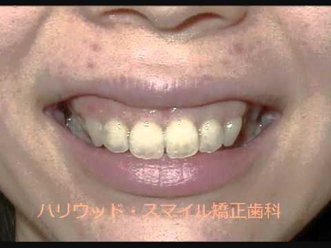 ハリウッド・スマイル矯正歯科 Gummy Smile