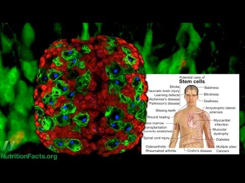 Broccoli Versus Breast Cancer Stem Cells