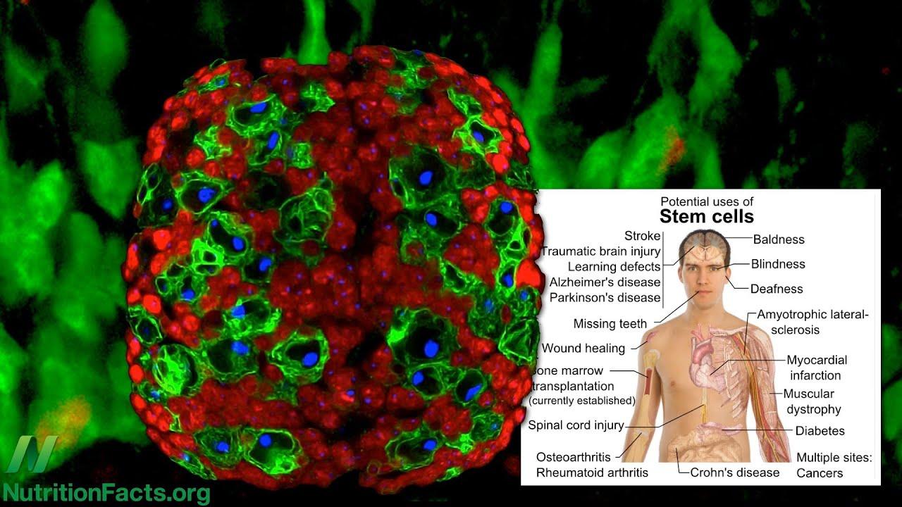 Broccoli Versus Breast Cancer Stem Cells