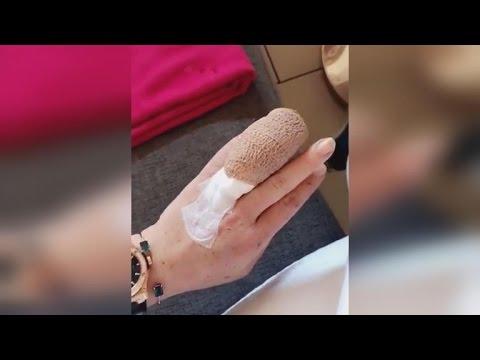 Lindsay Lohan Jokes After Losing Half of Her Finger in Boating Accident