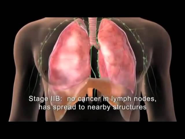 metastasi al fegato da carcinoma mammario