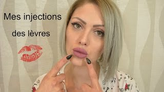Mes injections aux lèvres ( mon expérience )