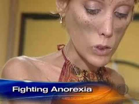 Anorexia's Childhood Roots (CBS News) Music Videos