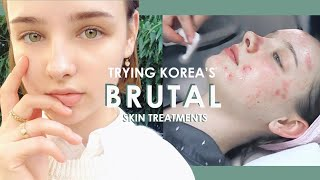 My First BRUTAL Korean Dermatology Experience 💉 #BANOBAGI Laser Treatments | Sissel