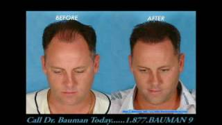 AMAZING Before and After Hair Transplant Transformations