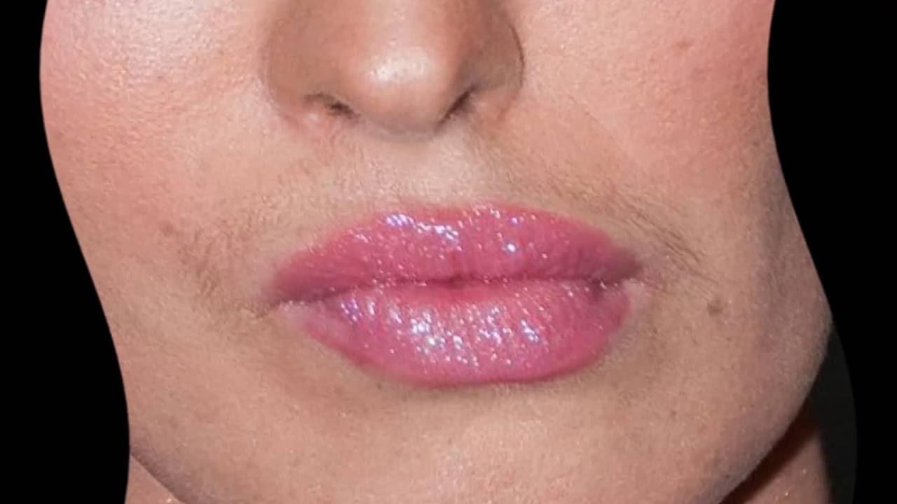 У девушки усы как избавиться навсегда в  909