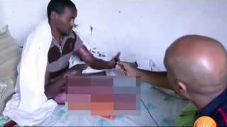 Seifu Fantahun Show - Seifu Meets A Man Who Lost Both His Legs And Hands