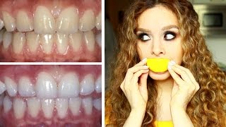 DIY: How to whiten teeth naturally for CHEAP!