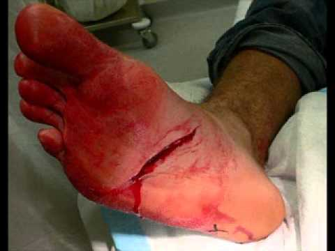 how to clean a deep wound
