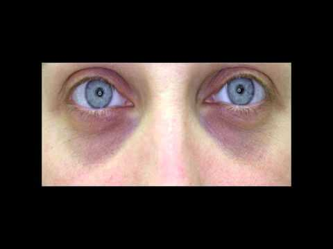 DIY How to Get Rid of DARK CIRCLES under eyes | dark circles under eyes treatment Home Remedy ✔