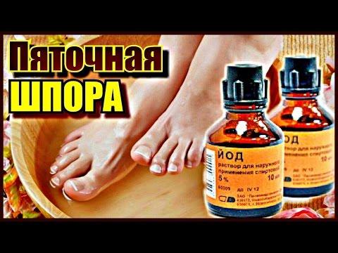 Народное средство лечения от пяточных шпор в домашних условиях