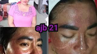 Solusi masalah kulit seperti flek hitam, jerawat, kusam, bopeng dan kerutan wajah di AJB 21 😇