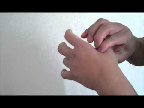 Stressed? Wrist Pain Hand Pain From Mouse Use