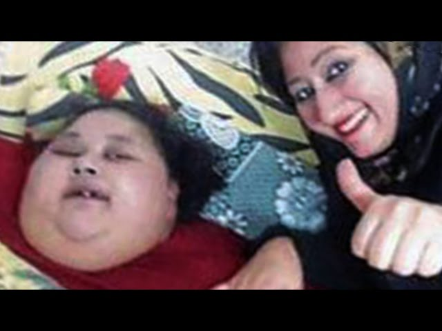 The World's Fattest Woman Has Lost An Incredible Amount Of Weight