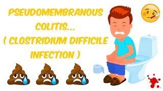 Clostridium Difficile Infection (Pseudomembranous Colitis)