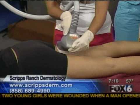 Dr. Tess Mauricio on Fox 6, VelaShape 2007