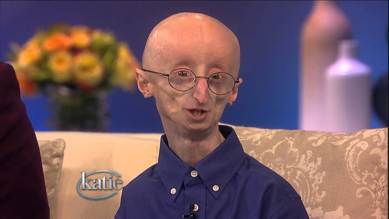progeria report Abstract a case report of 6-year-old boy with progeria syndrome, with marked cardiac complications is presented the boy had cardiorespiratory failure.