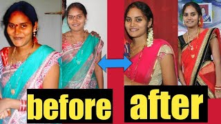 Healthy fast weight loss with no dieting...loss 5 to 6kg per month ...100% result...