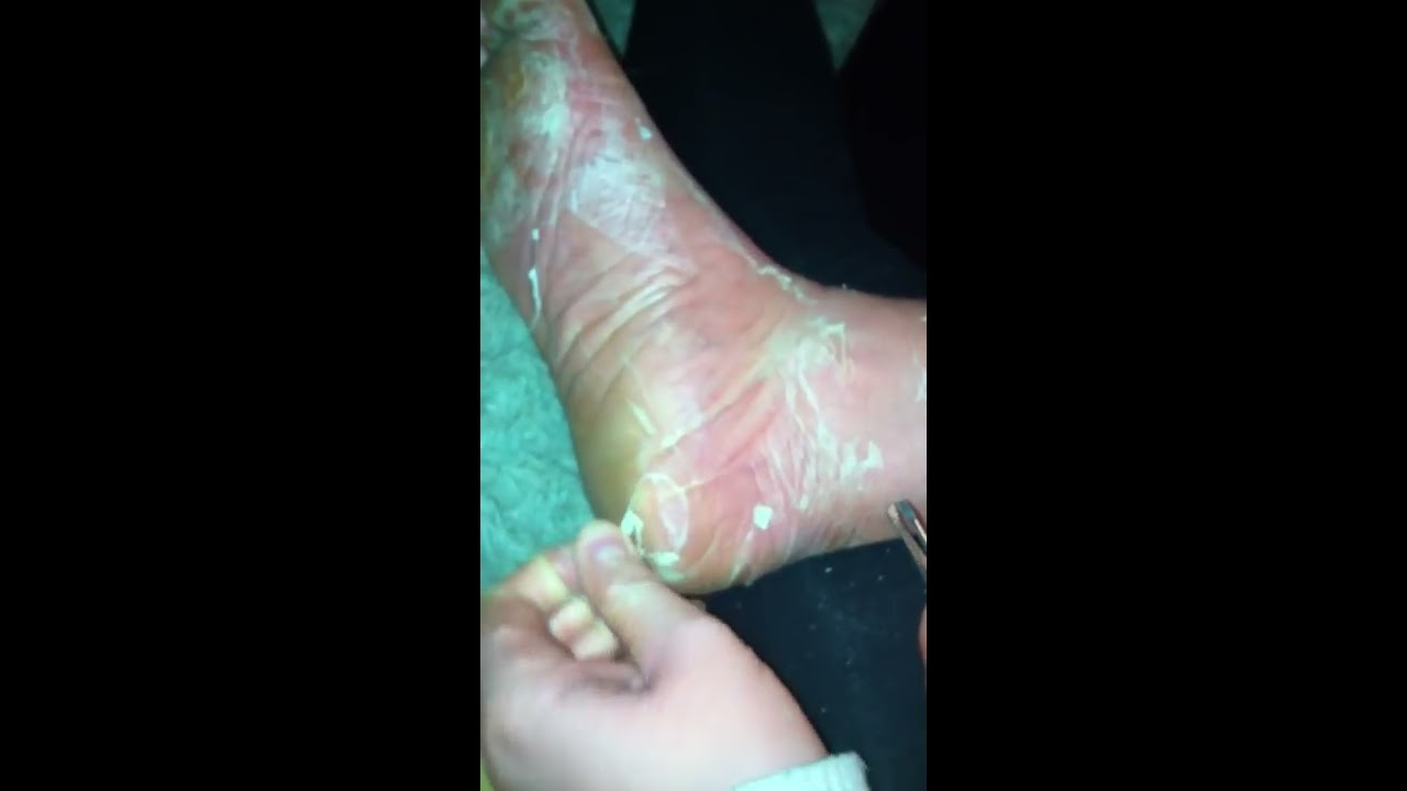 Small Blisters on Hands - Buzzle