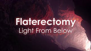 Flaterectomy - Light From Below