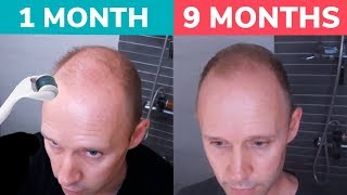 STOP BALDING! - Regrow Hair Naturally with Dermaroller! Real 9 Month Results
