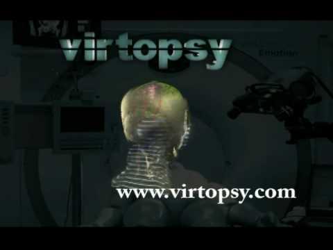The Virtobot System