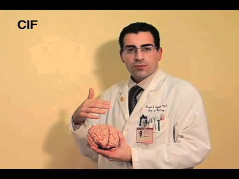Dr. Safdieh Explains How the Brain Works
