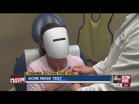 Does mask help clear up acne?