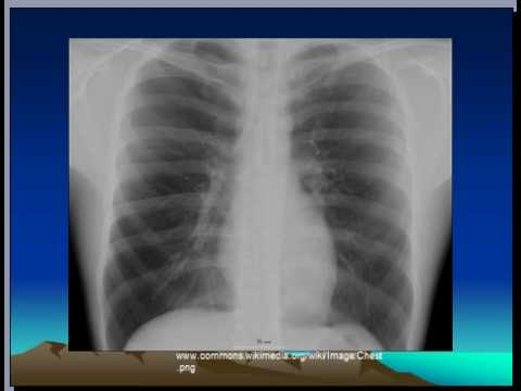 What Does Pneumonia Look Like On a Chest X-ray