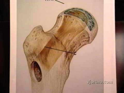 Hip Surgery: Fibular Grafting for Postcollapse Osteonecrosis of the Femoral Head